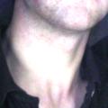 Rakovina krku