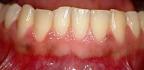 Svědění dásní