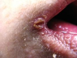 Anguli infektiosi – ústní koutky
