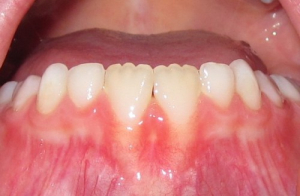 Nemoci dásní