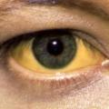 Žluté bělmo očí