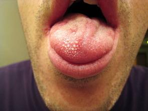 Spálený jazyk