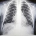 Plicní chlamydie