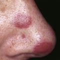 Léze nakůži přiHIV