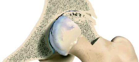 Artróza kyčle