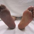 Trombóza dolních končetin