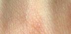 Svědění kůže