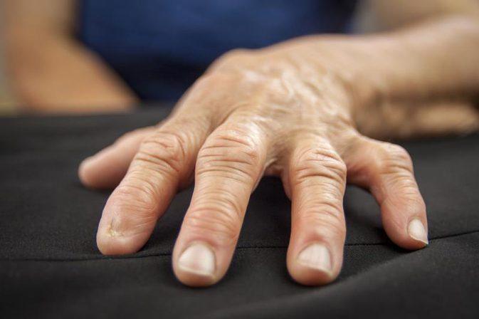 artróza rukou restaurare articulară